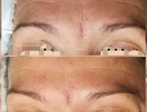 trattamento viso elixir di bellezza